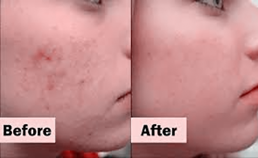 Cystic Acne-pimples