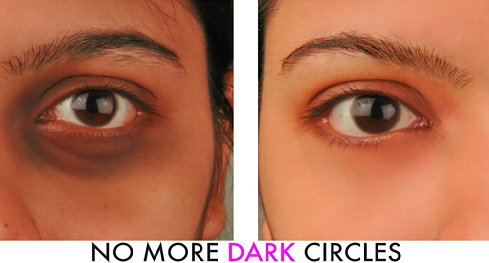 dark circles and Bags under the Eyes